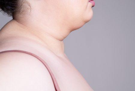 小心!这5种习惯会让你的颈变粗!摆脱它们变天鹅颈!